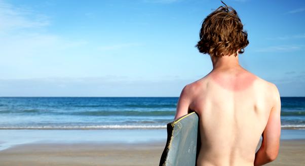 Oparzenia słoneczne - leczenie, objawy, sposoby na oparzenie słoneczne