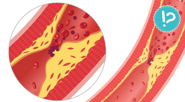 Cholesterol – obalamy mity