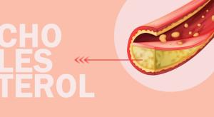 jakie są przyczyny zbyt wysokiego cholesterolu