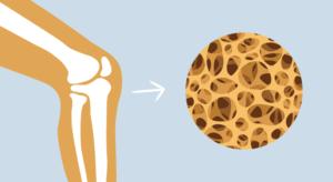 Osteoporoza. Jak pomóc sobie dietą?