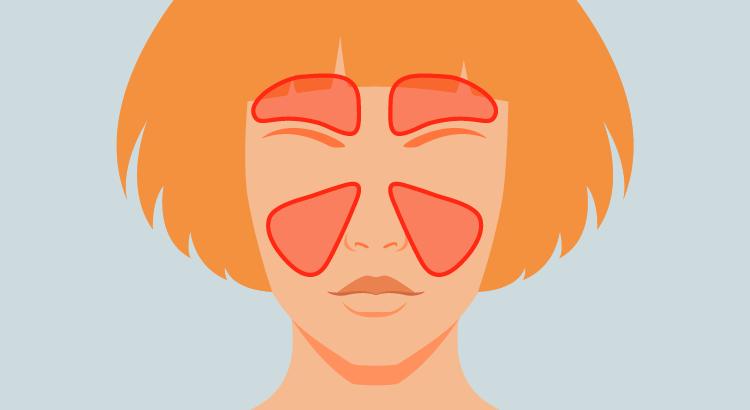 Znalezione obrazy dla zapytania zatokowe bóle głowy