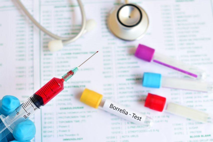 Strzykawki i fiolki do badania IGG przy boreliozie