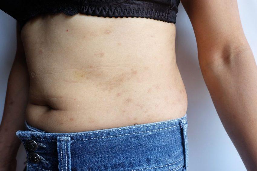 Wysypka na brzuchu - objaw boreliozy po latach