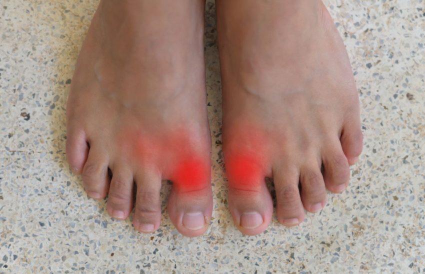 Stopy z czerwonymi śladami przy dużych palcach