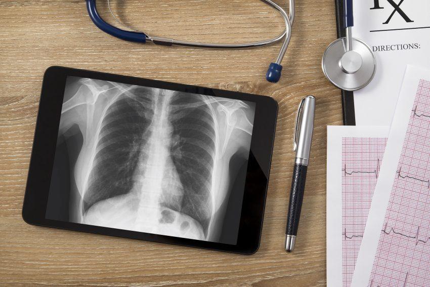 tebalet z rentgenem płuc leży na biurku