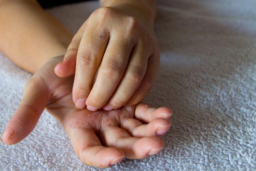 Dłonie z łuszczycą krostkową (krostkowicą)