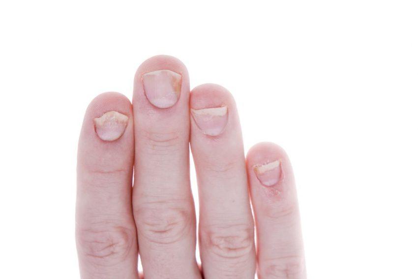 Palce z łuszczycą paznokci