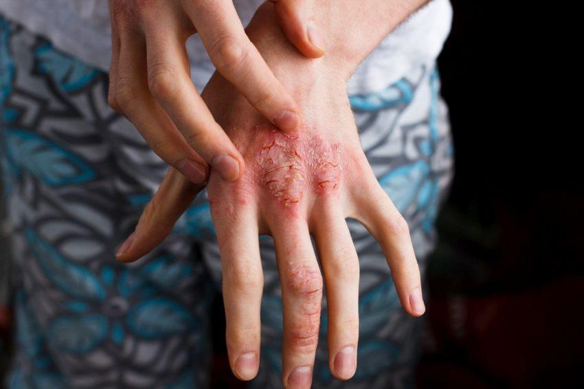 Dłonie z łuszczycą skóry