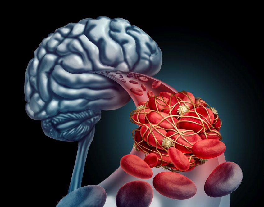 Graficzne przedstawienie miażdżycy mózgu