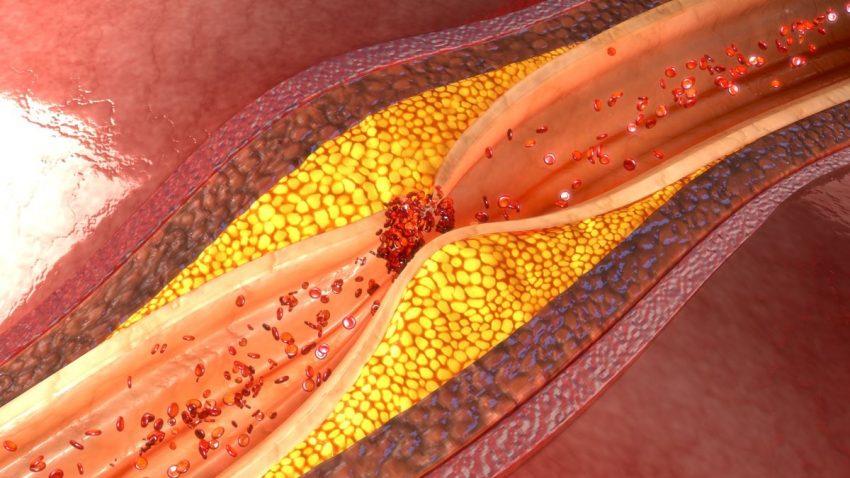 Miażdżyca tętnic