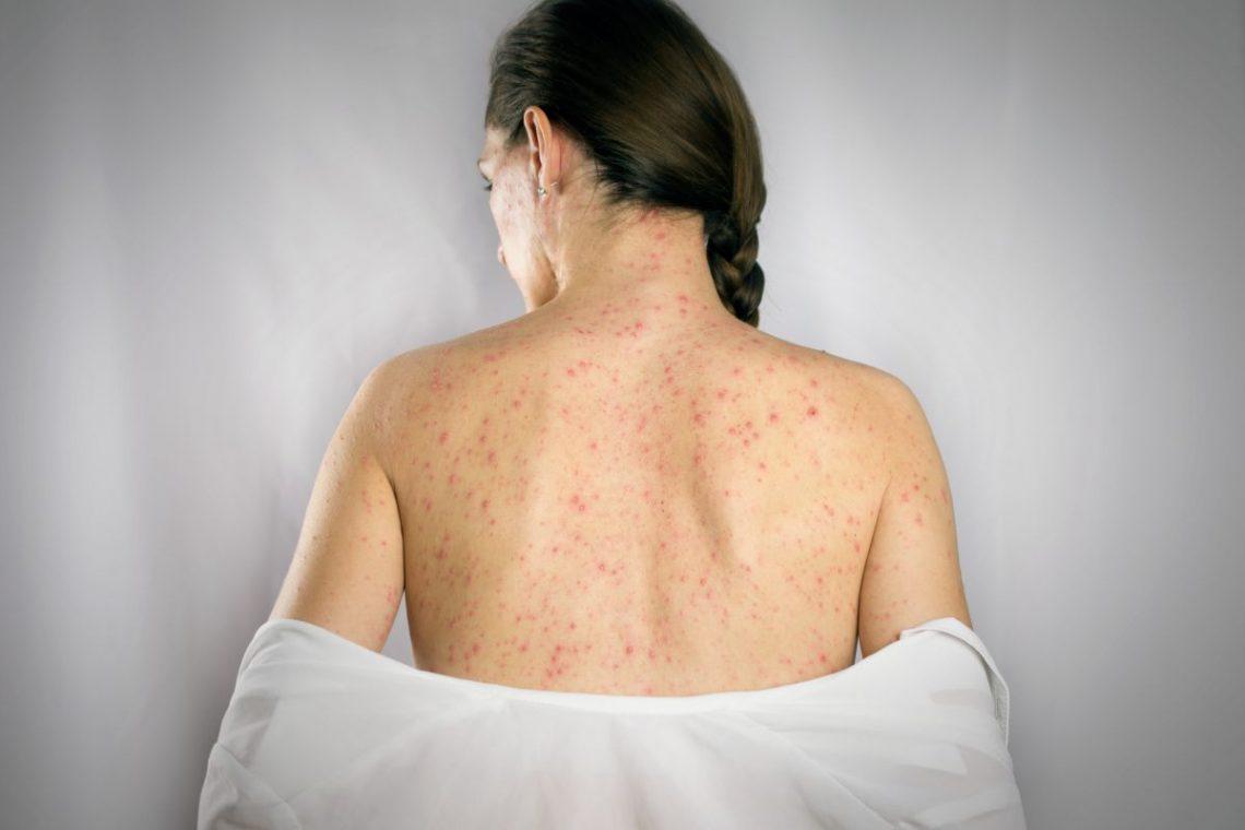 Wysypka na plecach kobiety chorej na mononukleozę