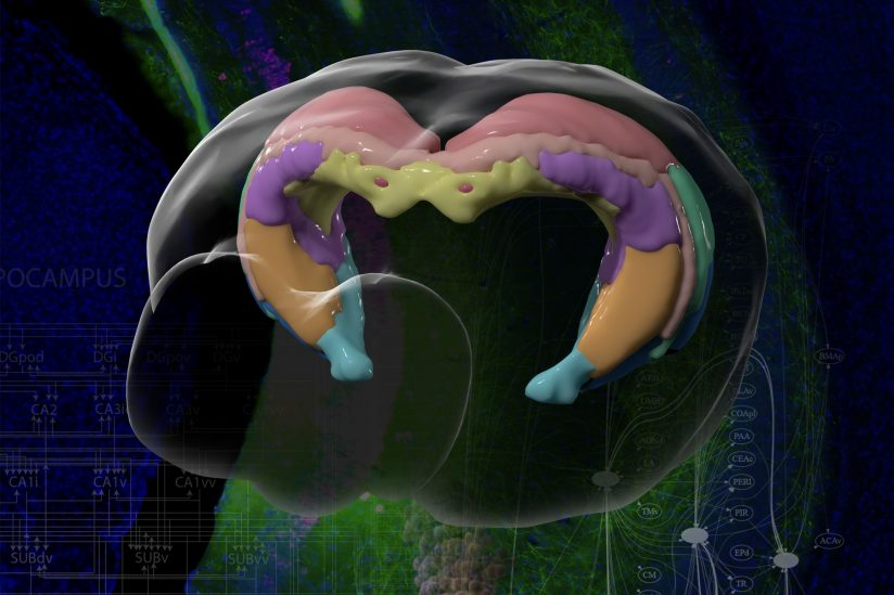 kolorowa mapa mózgu uszkodzonego przez Alzheimera