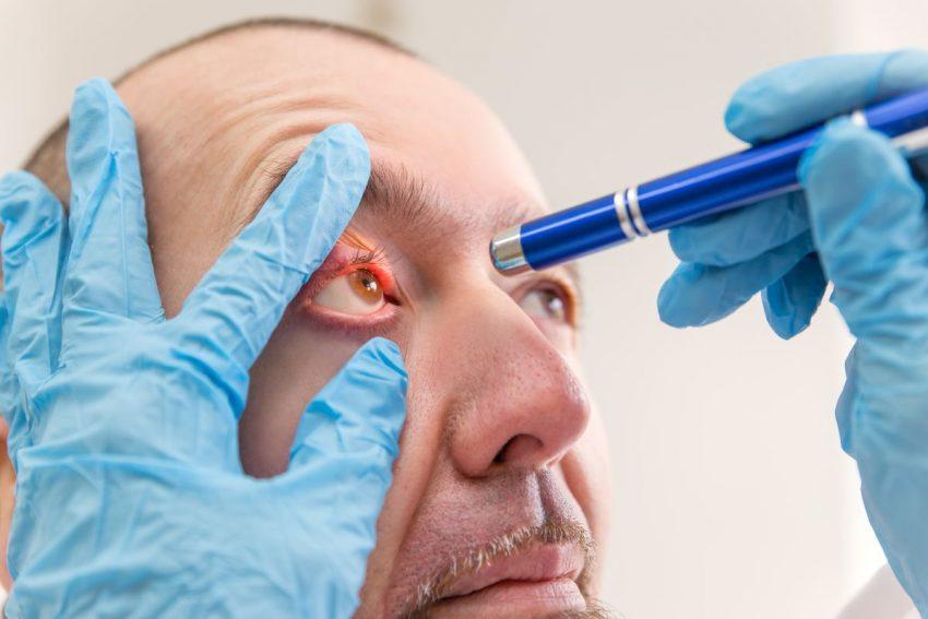 Lekarz sprawdza oczy mężczyźnie z półpaścem ocznym