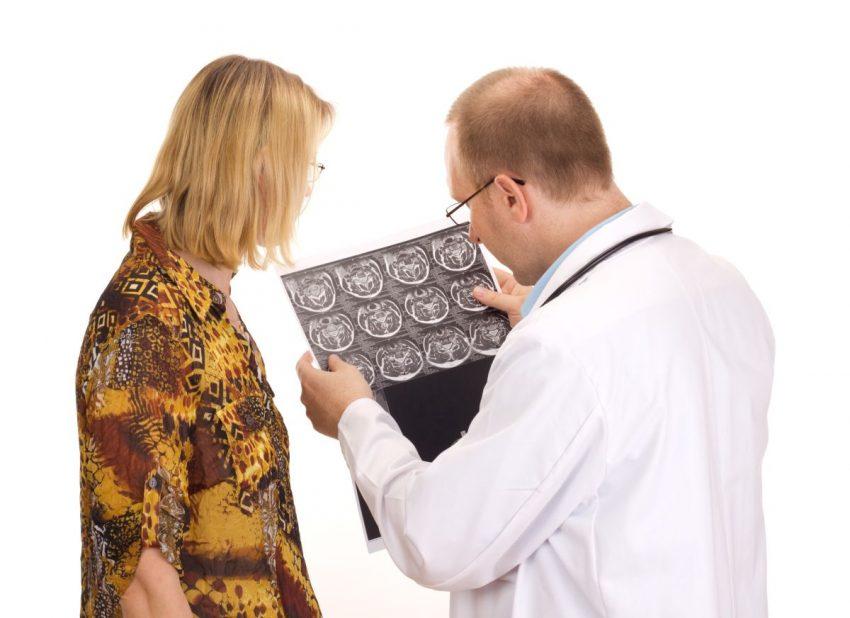 Lekarz przedstawia kobiecie początkowe objawy stwardnienia rozsianego w mózgu