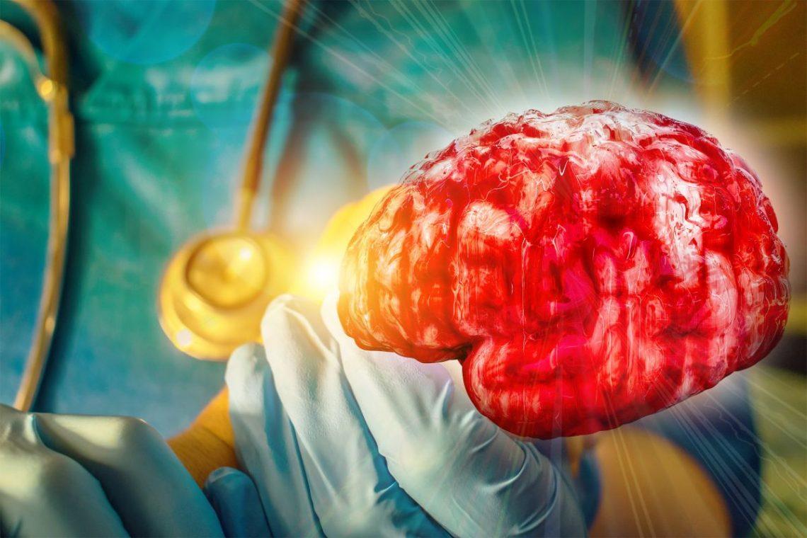 Graficzne przedstawienie mózgu osoby chorej na stwardnienie rozsiane