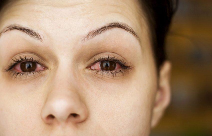 Oczy kobiety z wirusowym zapaleniem spojówek