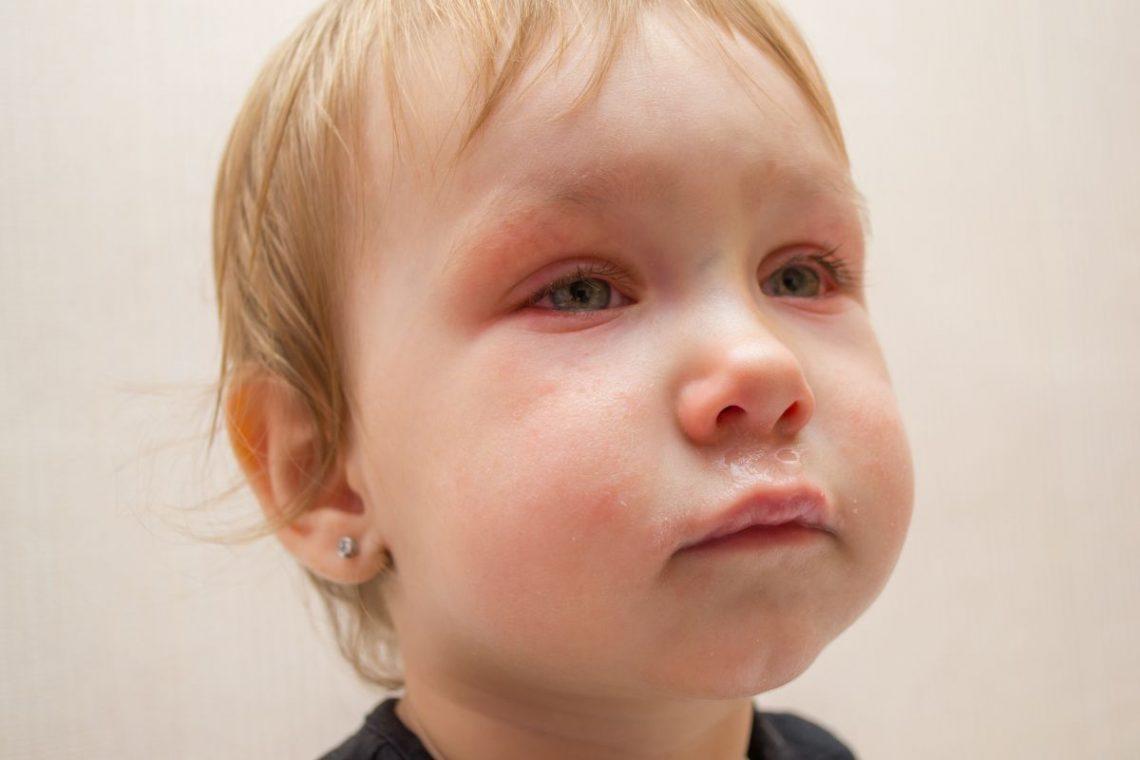 Mały chłopiec z zapaleniem spojówek