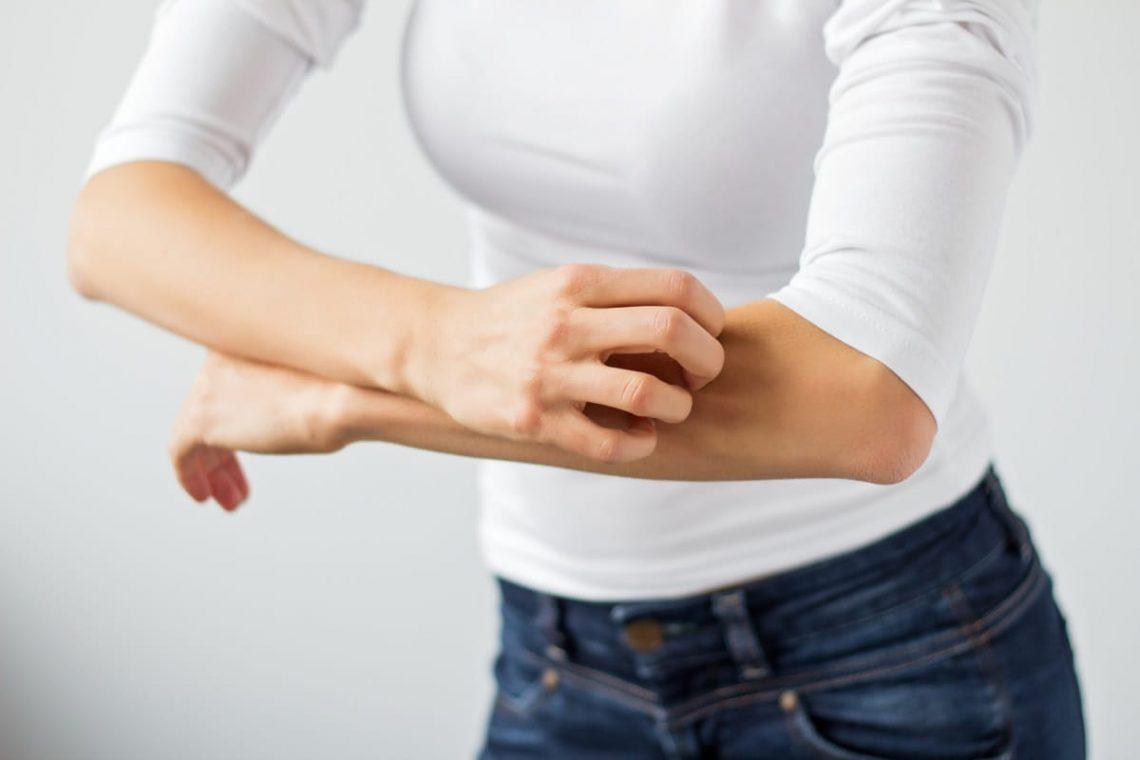 Kobieta drapie się po przedramieniu z powodu objawów alergii pokarmowej