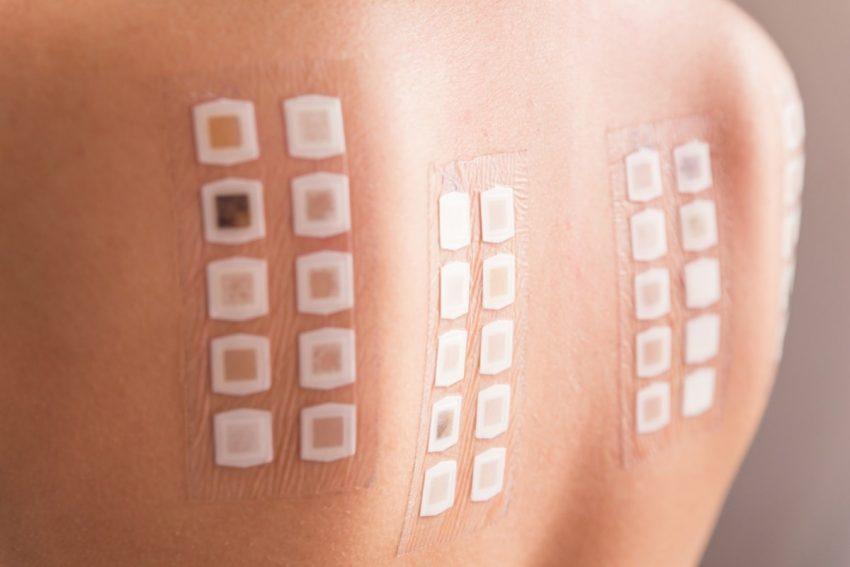 Kobieta poddaje się testowi na różne alergie pokarmowe