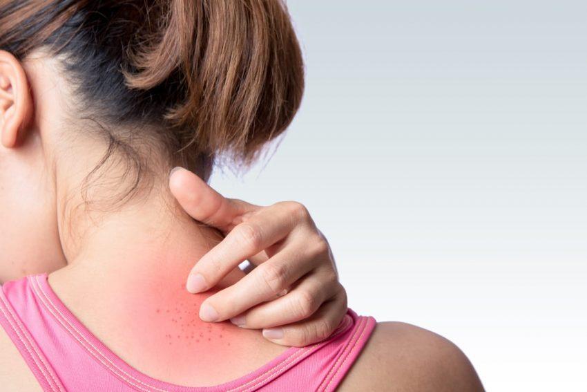 Kobieta drapie się w miejscu, gdzie ma wysypkę od alergii pokarmowej