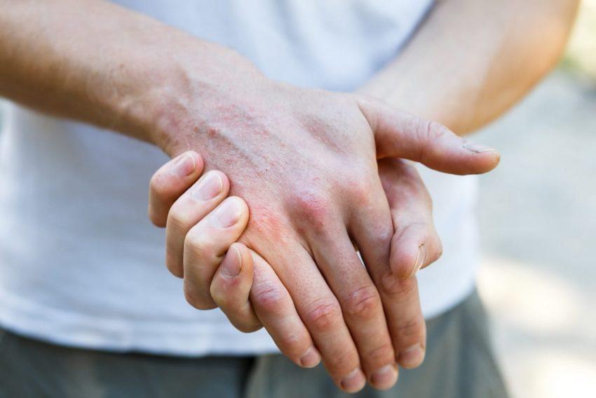Dłonie z chorobą autoimmunologiczną skóry