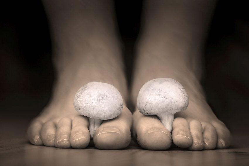 Stopy z grzybami między palcami