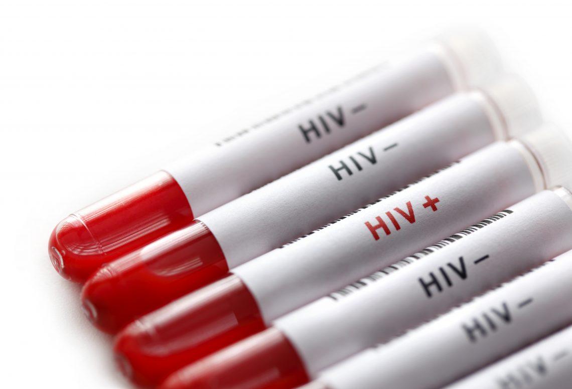 fiolki z krwią i napsem hiv
