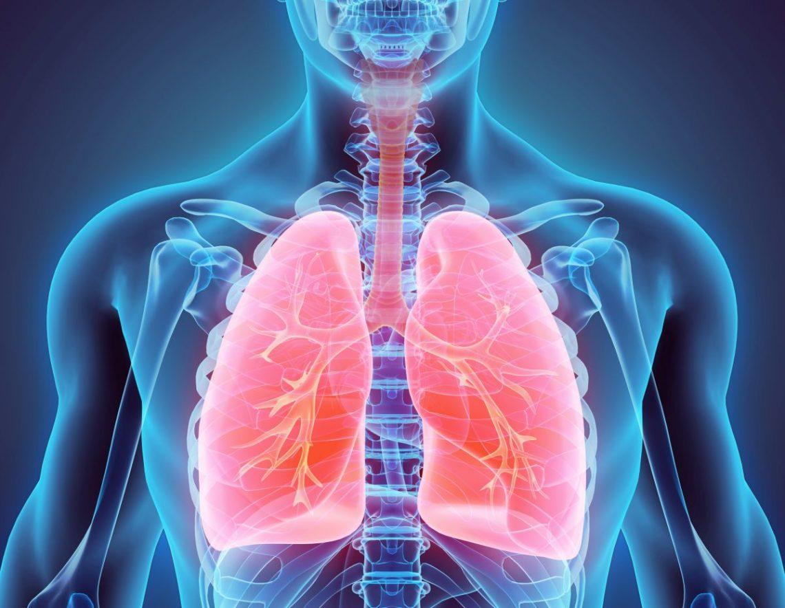Graficzne przedstawienie zmian w płucach przy nadciśnieniu płucnym