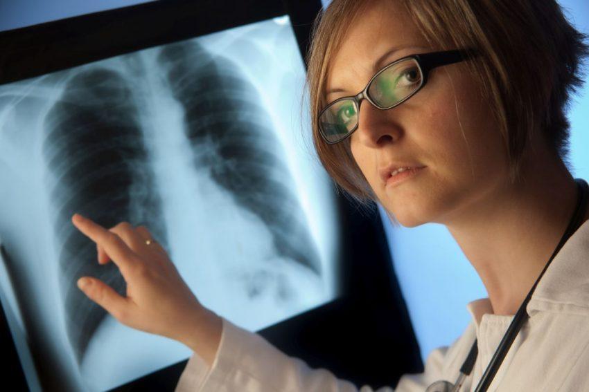 Lekarka omawia na rentgenie nowotwór płuc