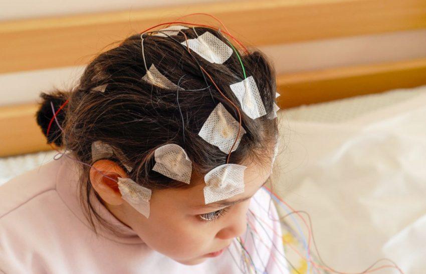Dziewczynka podczas leczenia padaczki