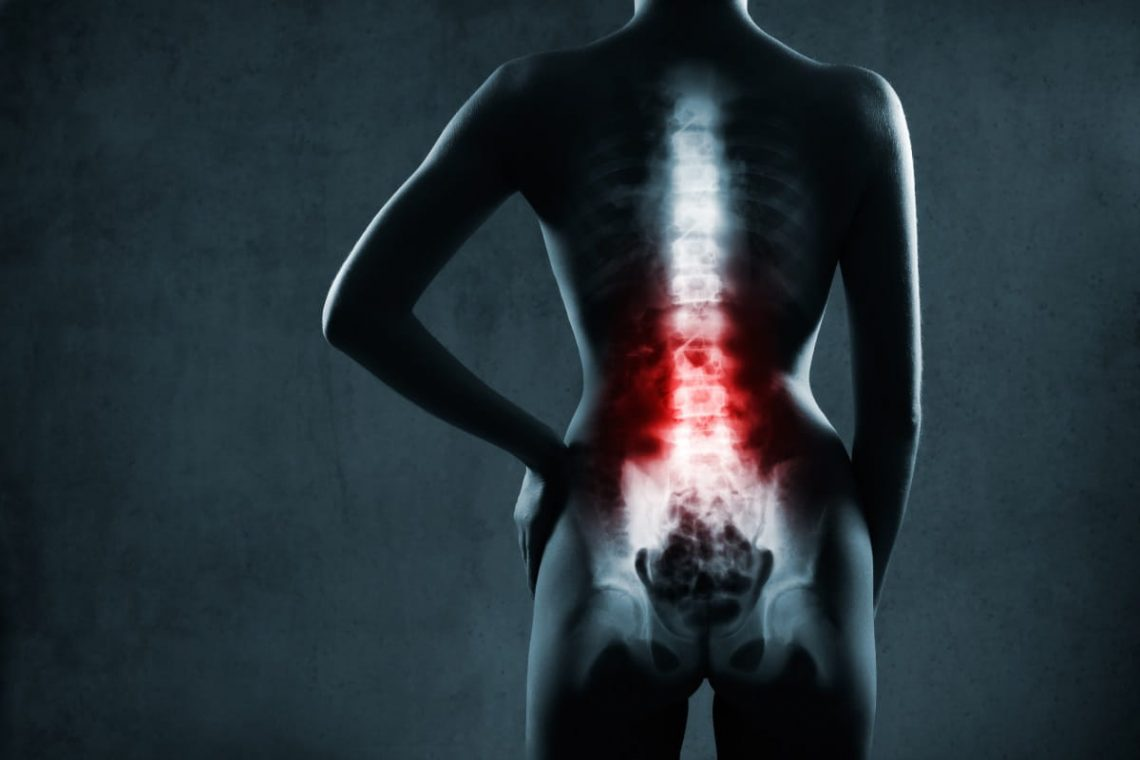 Graficzne przedstawienie bólu kręgosłupa promieniującego do nóg