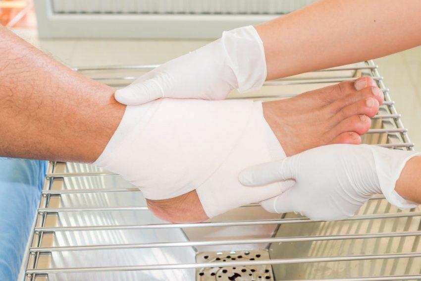 Noga w opatrunku pacjenta z wrzodami na ciele