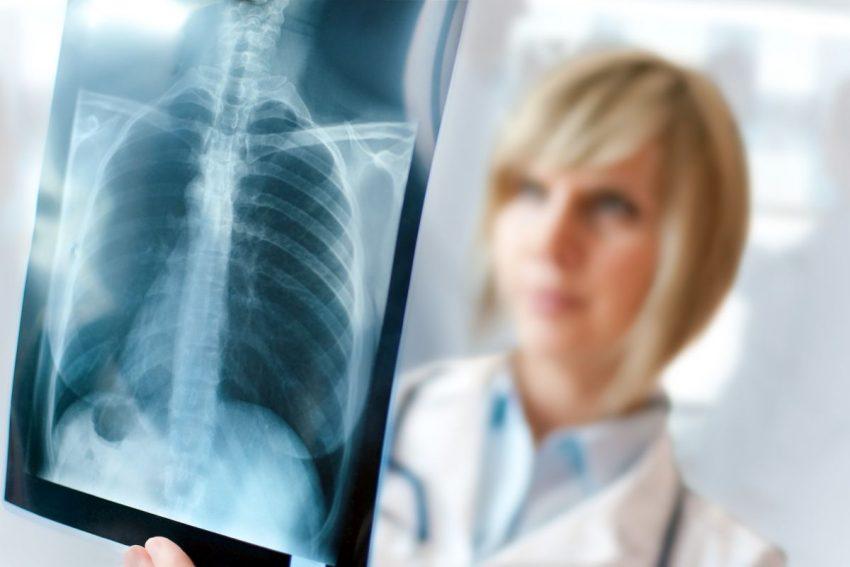 Zdjęcie płuc