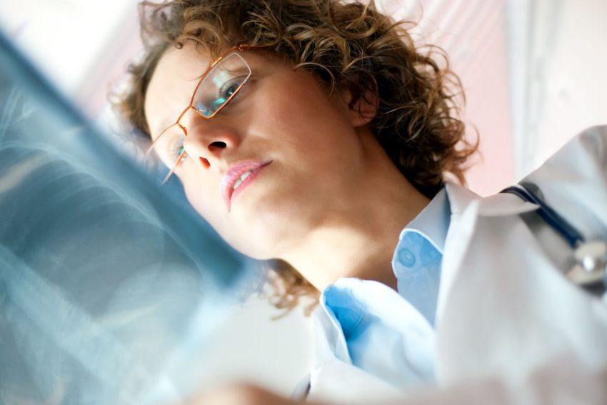 lekarka ogląda zdjęcie płuc