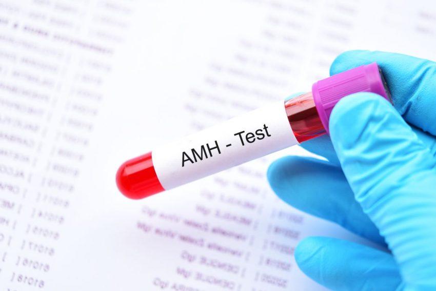 test AMH