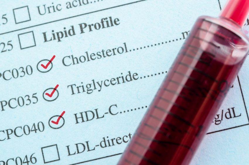 Mierzenie normy cholesterolu we krwi