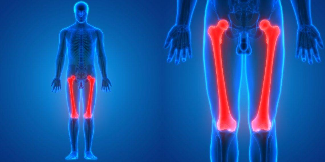 choroba Perthesa - sylwetka człowieka z wyróżnionymi kośćmi udowymi