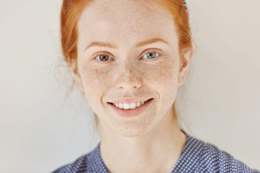 heterochromia - kobieta o dwóch różnych kolorach oczu