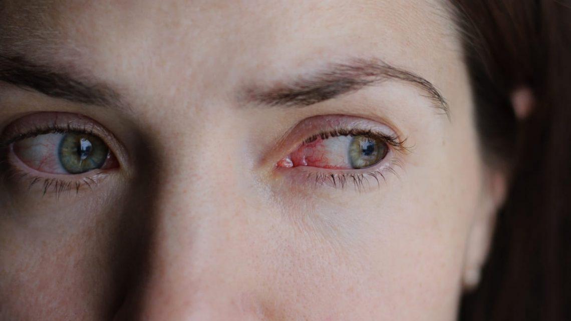 pęknięte naczynka w oku