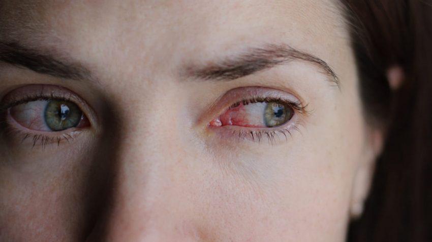kobieta z czerwonymi oczami