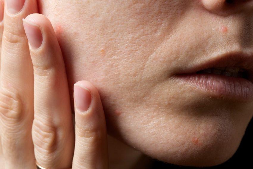 skóra twarzy