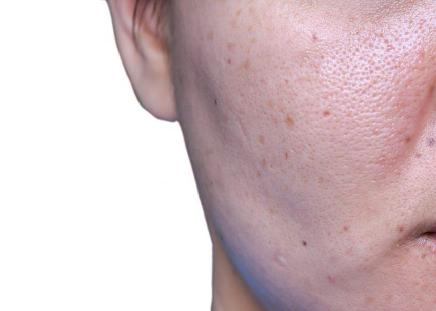 kobieta z problemami skóry twarzy