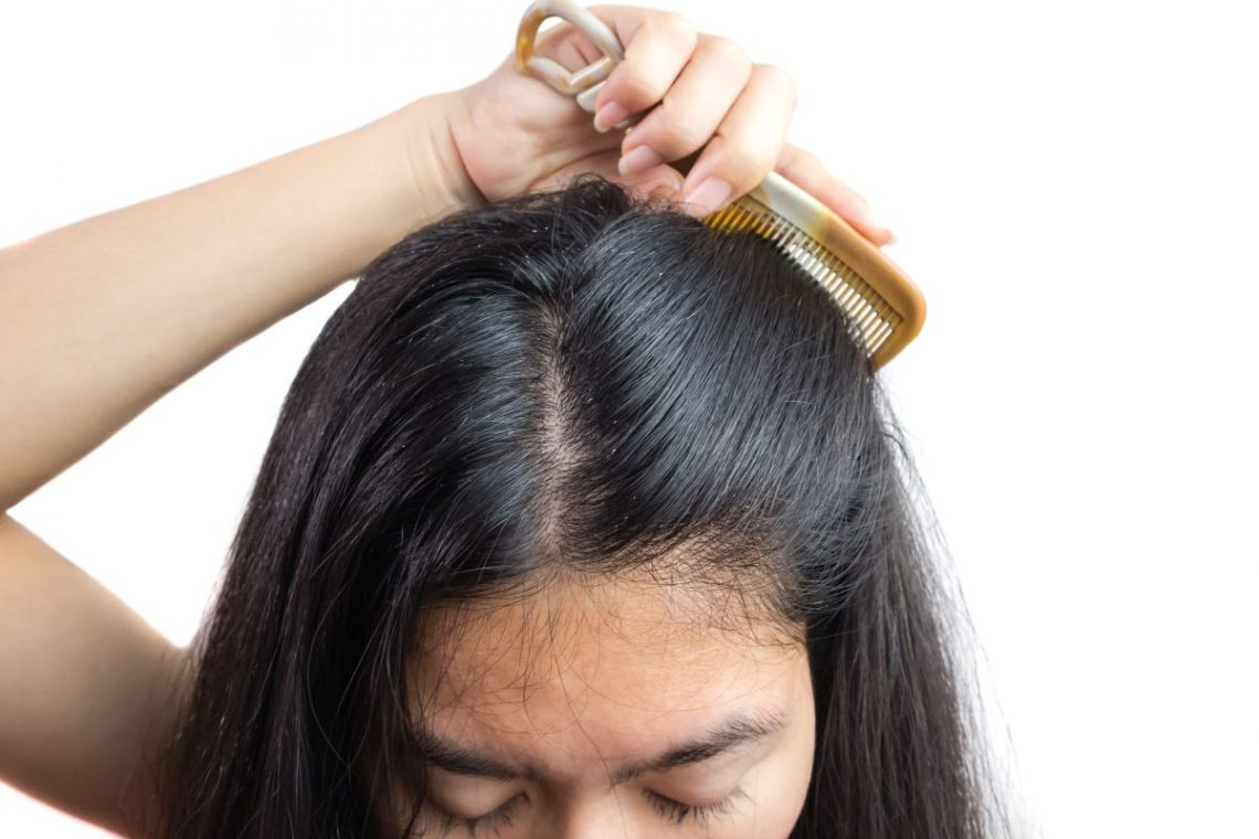 przetłuszczanie się włosów i wypadanie