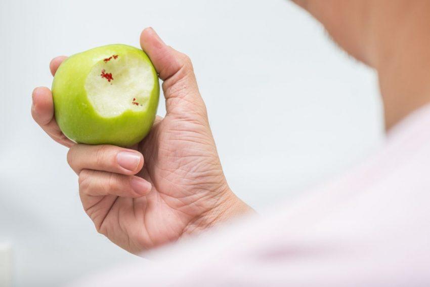 ślady krwi na jabłku po ugryzieniu, spowodowane przez szkorbut