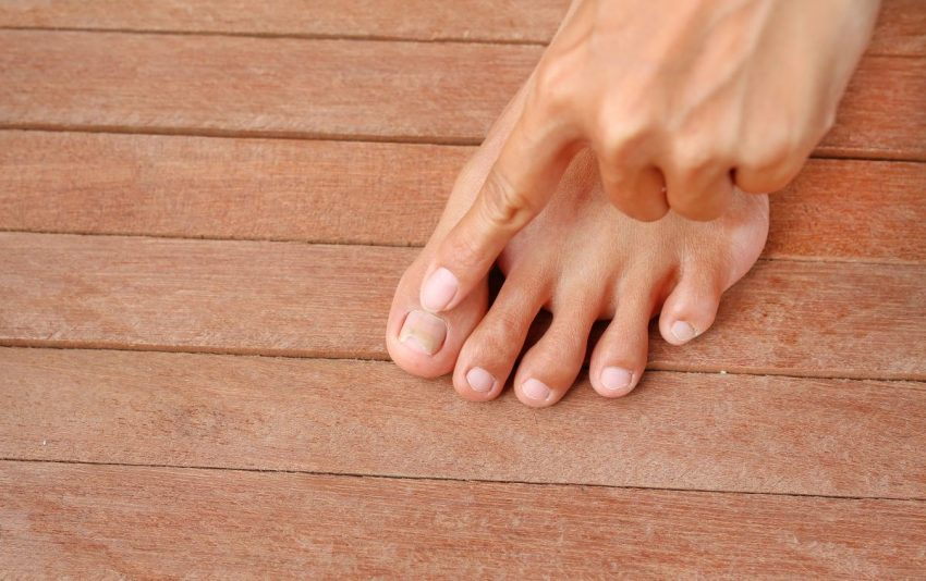 Palec wskazujący wrastające paznokcie na stopie