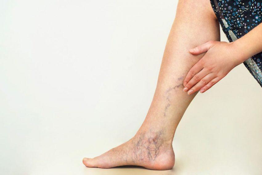 Ślady zakrzepicy na kobiecej nodze