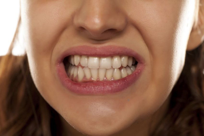 kobieta zgrzytająca zębami