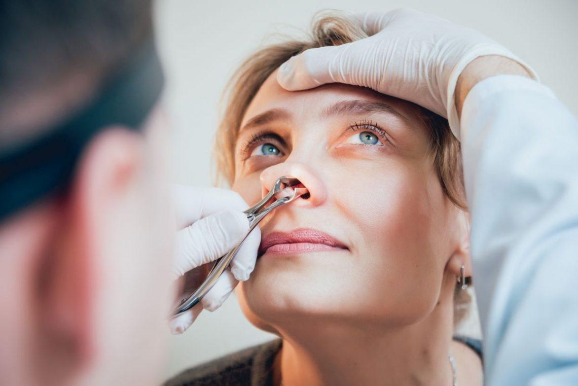 Kobieta siedzi na krześle u lekarza i patrzy w górę, a lekarz zagląda jej do nosa specjalnymi szczypcami