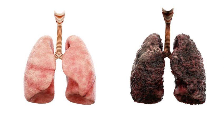Dwa obrazki przedstawiające płuca - jedne są różowe, a drugie czarne