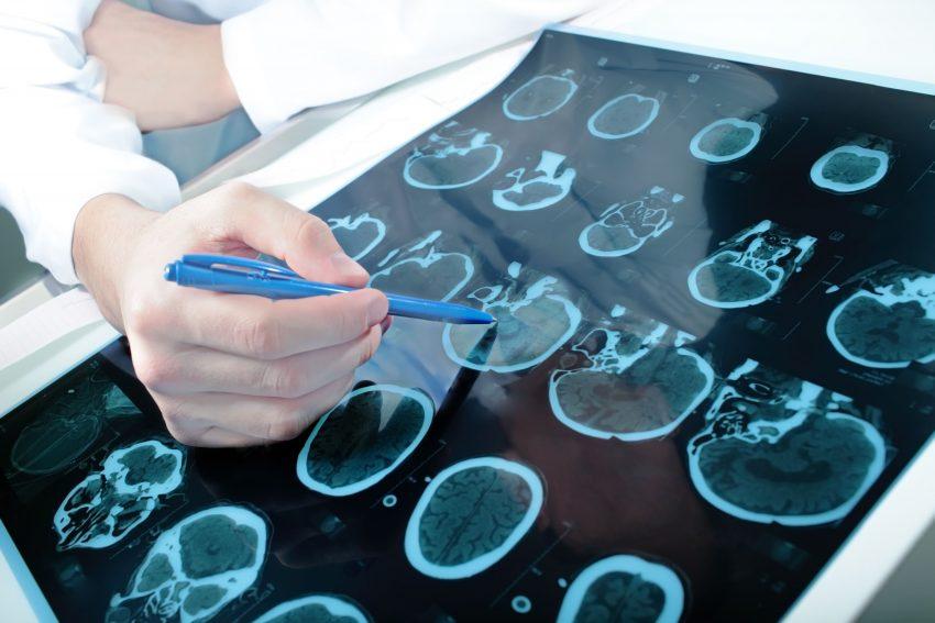 lekarz oglądający zdjęcia rtg mózgu